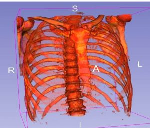 spine and rib cage 3D image