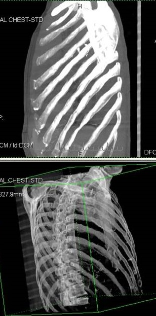 spine and rib cage xray