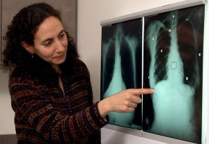 Prof Dina Brooks pointing to an x-ray of a patient's chest