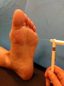 Monofilament testing: a flexible, thin wire gently touches the sole of a patient's foot